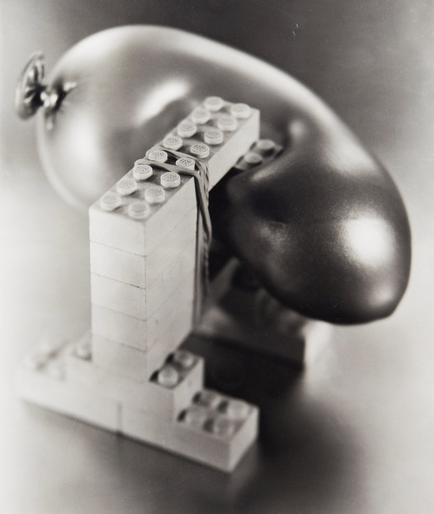 Artwork by Damian Moppett,  Untitled (B&W Lego Pcs-Rubber Band)